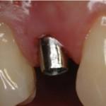 implantologia-studio-dentistico-bologna