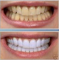 sbiancamento-dentale-studio-odontoiatrico-bologna