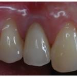 implantologia-2-studio-dentistico-bologna