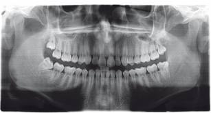 panoramica-ortopantomografia-studio-dentistico-bologna