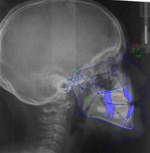 teleradiografia-studio-dentistico-bologna