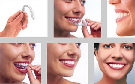 Immagine apparecchio invisalign - studio dentistico Bologna